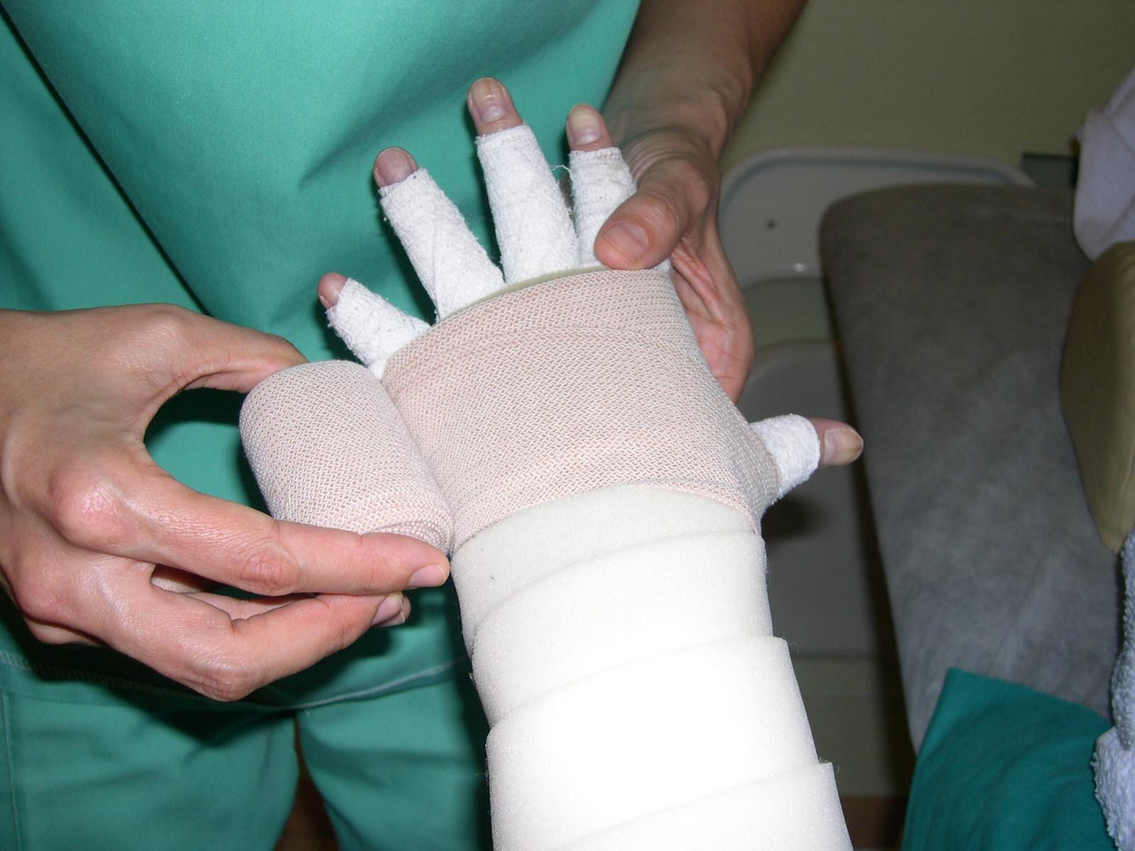 Vendaje Tratamiento Linfedema